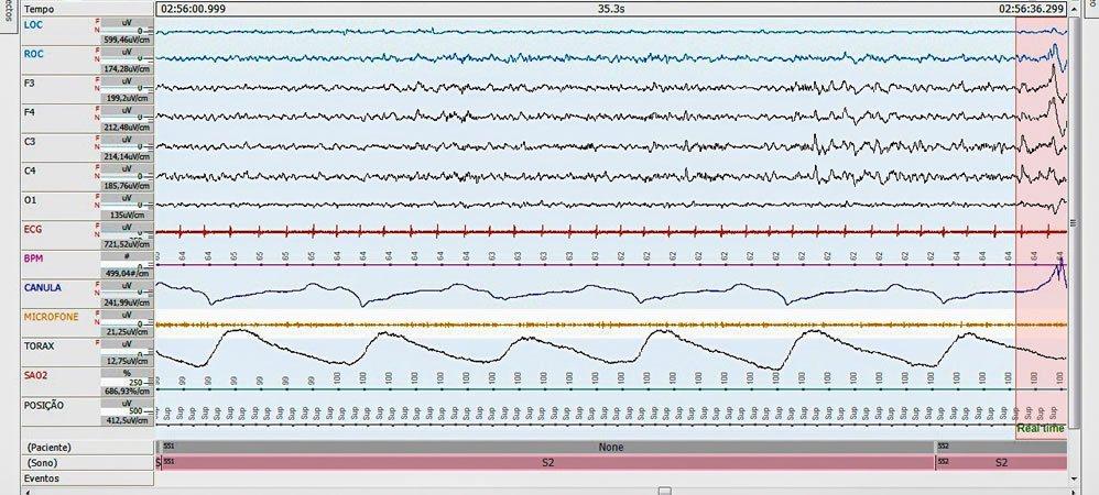 Exame do Sono, Polissonografia em Clínica Neurológica de Americana - SP