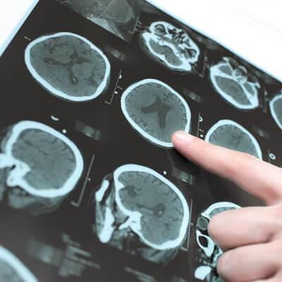 Diagnostico de Distúrbios da Consciência, Memória e do Comportamento